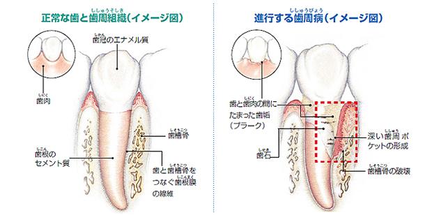 歯茎(はぐき)の模式図