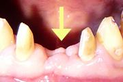 症例2:歯肉移植術(結合組織移植術)