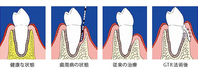 GTR法(メンブレンを用いた再生治療) Guided Tissue Regeneration