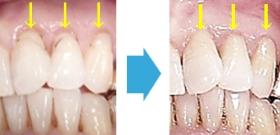 マイクロスコープ(歯科用顕微鏡治療)により超精密審美治療
