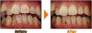 歯科医院での歯のクリーニング(PMTC)